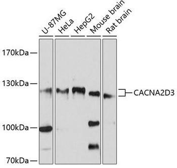 Cell Biology Antibodies 1 Anti-CACNA2D3 Antibody CAB10315