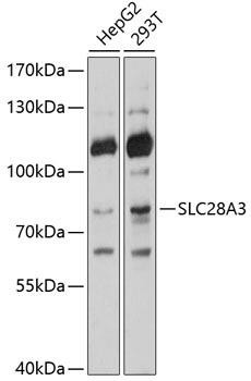 Cell Biology Antibodies 1 Anti-SLC28A3 Antibody CAB10320