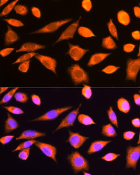 Cell Biology Antibodies 1 Anti-RPS20 Antibody CAB10363