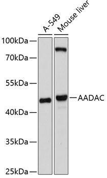 Cell Biology Antibodies 1 Anti-AADAC Antibody CAB10365