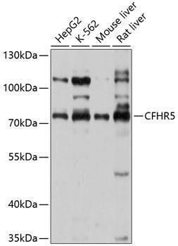 Cell Biology Antibodies 1 Anti-CFHR5 Antibody CAB10367