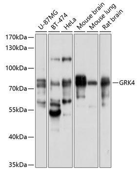 Cell Biology Antibodies 1 Anti-GRK4 Antibody CAB10370