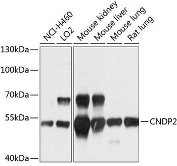 Cell Biology Antibodies 1 Anti-CNDP2 Antibody CAB10381