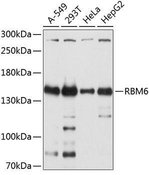 Cell Biology Antibodies 1 Anti-RBM6 Antibody CAB10391
