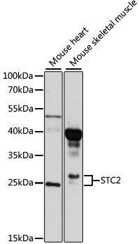 Cell Biology Antibodies 1 Anti-STC2 Antibody CAB10397