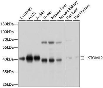 Cell Biology Antibodies 1 Anti-STOML2 Antibody CAB10398