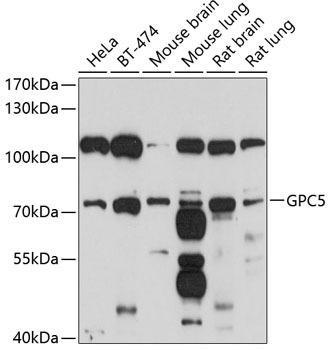Cell Biology Antibodies 1 Anti-GPC5 Antibody CAB10411