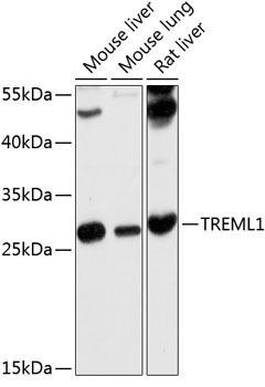 Cell Biology Antibodies 1 Anti-TREML1 Antibody CAB10414