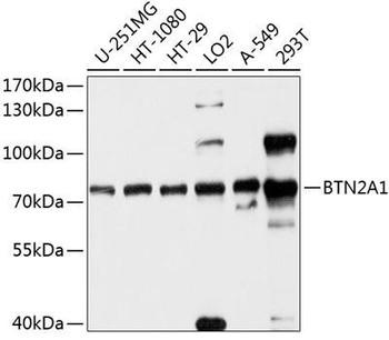 Cell Biology Antibodies 1 Anti-BTN2A1 Antibody CAB10418