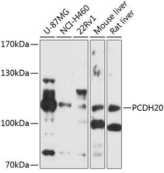 Cell Biology Antibodies 1 Anti-PCDH20 Antibody CAB10428