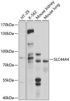 Cell Biology Antibodies 1 Anti-SLC44A4 Antibody CAB10435