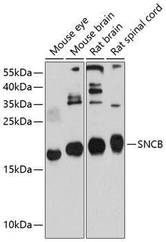 Cell Biology Antibodies 1 Anti-SNCB Antibody CAB10443