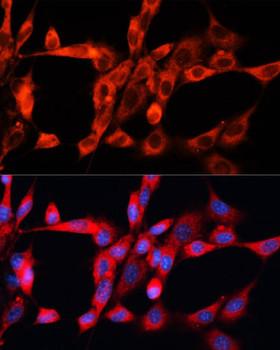 Cell Biology Antibodies 1 Anti-STX2 Antibody CAB10444