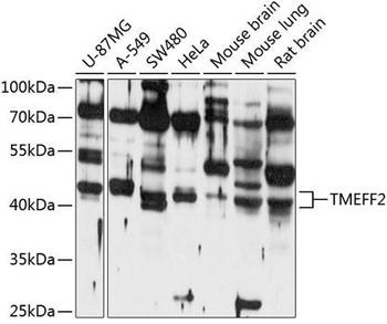 Cell Biology Antibodies 1 Anti-TMEFF2 Antibody CAB10464