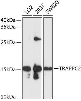 Cell Biology Antibodies 1 Anti-TRAPPC2 Antibody CAB10465