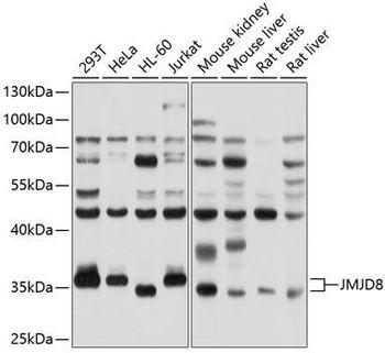 Cell Biology Antibodies 1 Anti-JMJD8 Antibody CAB10476