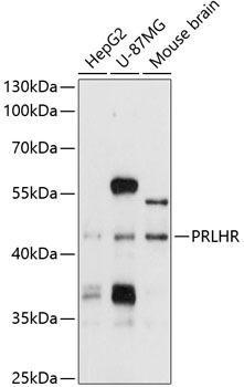 Cell Biology Antibodies 1 Anti-PRLHR Antibody CAB10479