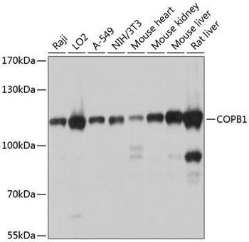 Cell Biology Antibodies 1 Anti-COPB1 Antibody CAB10485