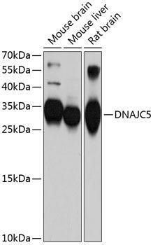 Cell Biology Antibodies 1 Anti-DNAJC5 Antibody CAB10489