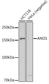 Signal Transduction Antibodies 1 Anti-ANO1 Antibody CAB10498