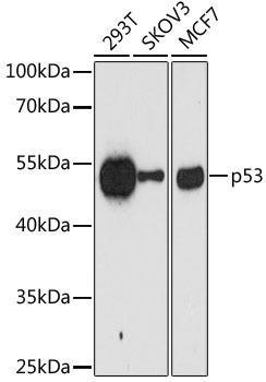 Cell Death Antibodies 1 Anti-p53 Mouse Monoclonal Antibody CAB10610