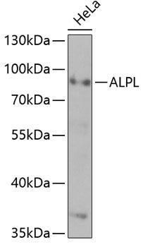 Signal Transduction Antibodies 1 Anti-ALPL Antibody CAB1080