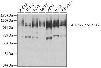 Cell Biology Antibodies 2 Anti-ATP2A2 / SERCA2 Antibody CAB1097