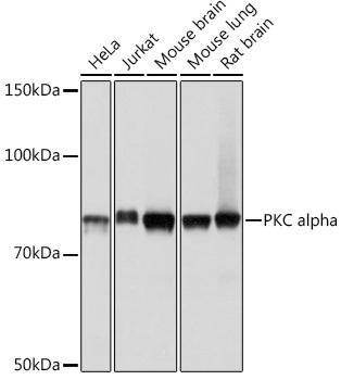 Cardiovascular Antibodies Anti-PKC alpha Antibody CAB11107