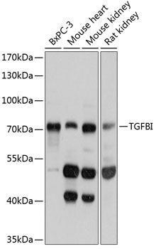 Cell Biology Antibodies 2 Anti-TGFBI Antibody CAB11222