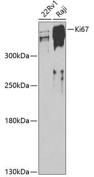 Cell Cycle Antibodies 1 Anti-Ki67 Antibody CAB11390