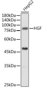 Cell Biology Antibodies 2 Anti-HGF Antibody CAB1193