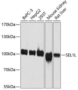 Signal Transduction Antibodies 1 Anti-SEL1L Antibody CAB12073