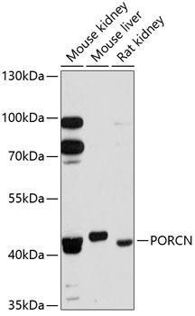 Metabolism Antibodies 1 Anti-PORCN Antibody CAB12250