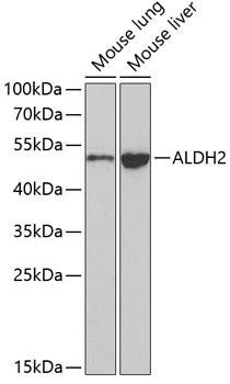 Cell Biology Antibodies 2 Anti-ALDH2 Antibody CAB1226