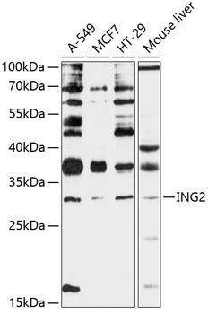 Developmental Biology Anti-ING2 Antibody CAB12266