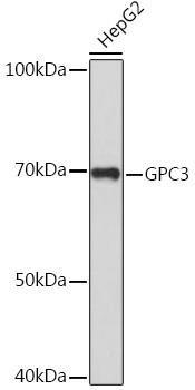 Cell Biology Antibodies 2 Anti-GPC3 Antibody CAB12383