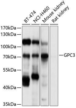 Cell Biology Antibodies 2 Anti-GPC3 Antibody CAB12384
