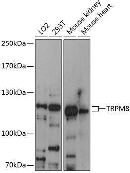 Signal Transduction Antibodies 1 Anti-TRPM8 Antibody CAB12572