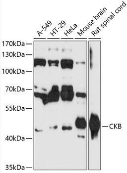 Cell Biology Antibodies 3 Anti-CKB Antibody CAB12631