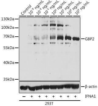 Immunology Antibodies 1 Anti-GBP2 Antibody CAB12994