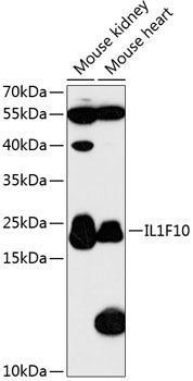 Immunology Antibodies 1 Anti-IL-1F10 Antibody CAB13133