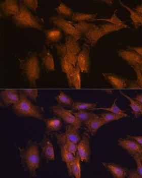 Immunology Antibodies 1 Anti-TSLP Antibody CAB13134