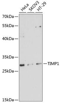 Immunology Antibodies 1 Anti-TIMP1 Antibody CAB1389