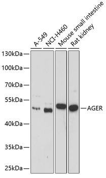 Immunology Antibodies 1 Anti-AGER Antibody CAB1395