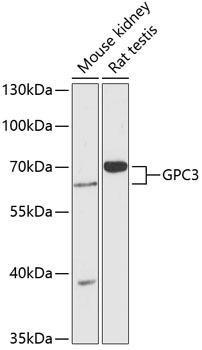 Cell Biology Antibodies 4 Anti-GPC3 Antibody CAB13988