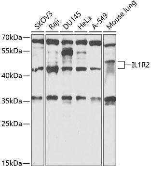 Cell Biology Antibodies 4 Anti-IL-1R2 Antibody CAB14072