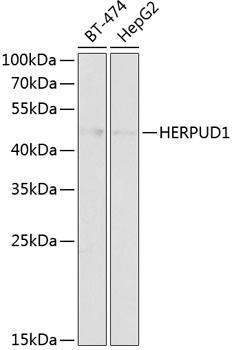 Signal Transduction Antibodies 1 Anti-HERPUD1 Antibody CAB14097