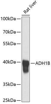 Cell Biology Antibodies 4 Anti-ADH1B Antibody CAB1431