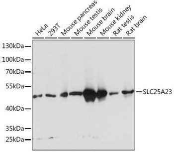 Signal Transduction Antibodies 1 Anti-SLC25A23 Antibody CAB14352