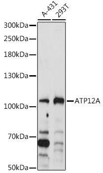 Signal Transduction Antibodies 1 Anti-ATP12A Antibody CAB14372